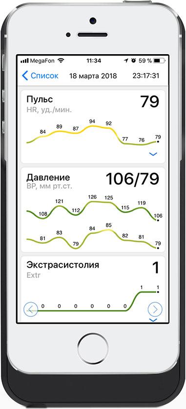 Миниатюра Модуль кардиомонитора CardioQVARK для iPhone 6/6s/7/8/SE2020 №3