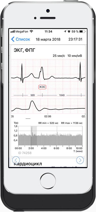 Миниатюра Модуль кардиомонитора CardioQVARK для iPhone 6/6s/7/8/SE2020 №5