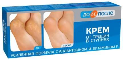 Крем для ног До и после от трещин в ступнях 50 мл
