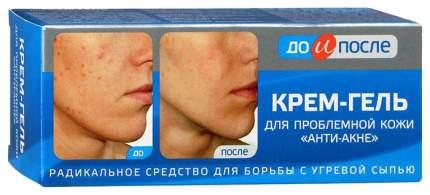 Крем-гель До и после Анти-акне для проблемной кожи 50 мл