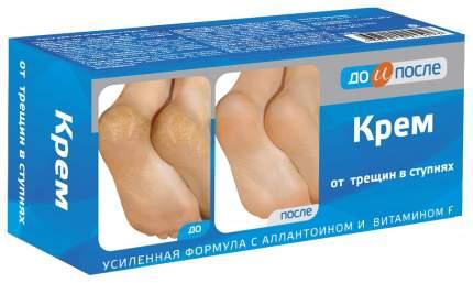 Крем для ног До и после от трещин в ступнях 150 мл
